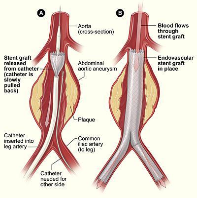 Intervento endovascolare (EVAR: EndoVascular Aortic Repair): http://www.giorgioghilardi-chirurgia.it/Approfondimenti/Aneurisma-dellaorta-addominale